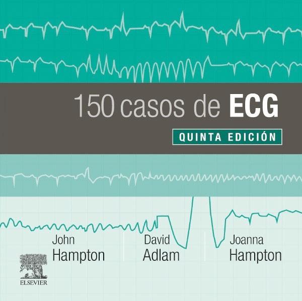150 problemas de ECG 5ª Ed.
