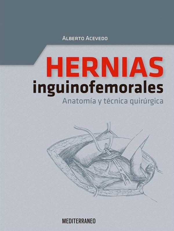 Hernias inginofemorales....